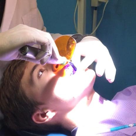 Empastes dentales sin mercurio, En Dental Denche